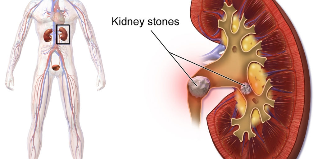 Kidney stone treatment without surgery
