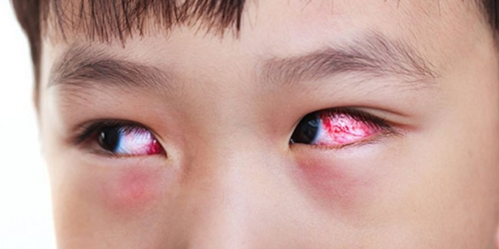 5 Most Common Eye Problems Related