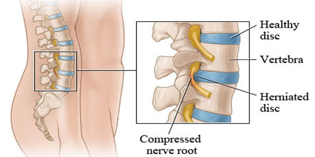 HERNIATED DISC PROBLEM