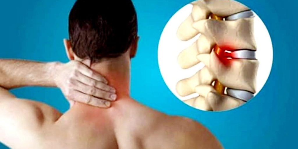 FACTS ABOUT SPONDYLOSIS