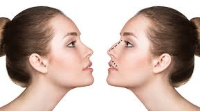 best doctor for rhinoplasty in london